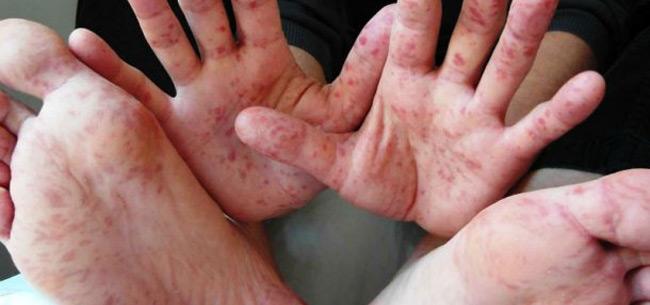 Во Владимирской области растет число заболевших корью